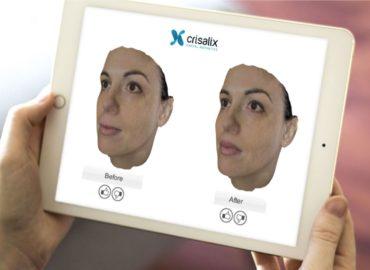 Безкоштовне 3D моделювання носа системою «Crisalix»