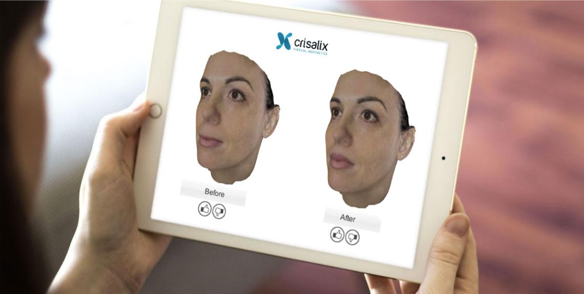 Бесплатное 3D моделирование носа системой «Crisalix»